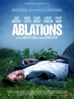 Ablations